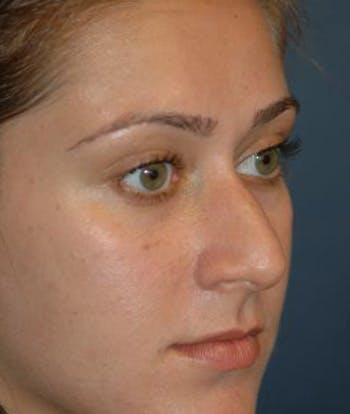 Rhinoplasty Gallery - Patient 4861555 - Image 1