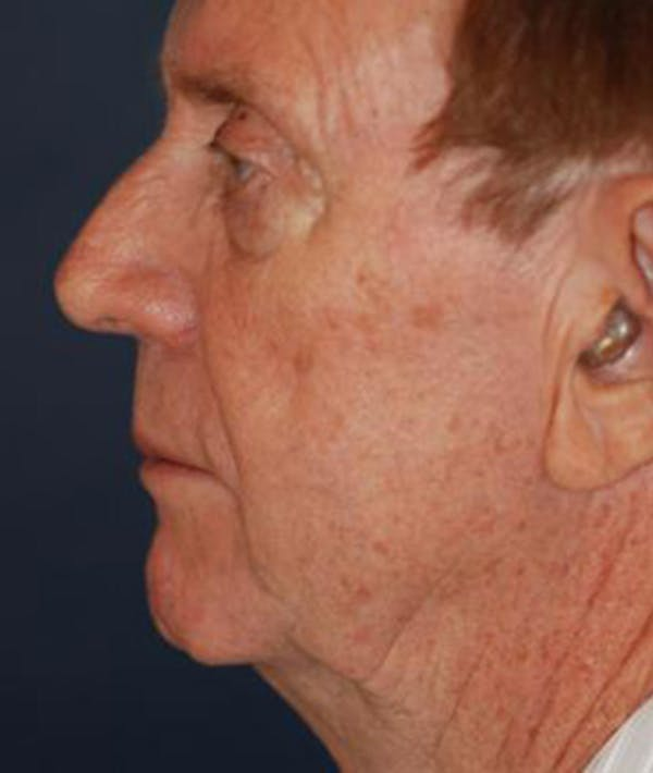 Facelift Gallery - Patient 4861553 - Image 3