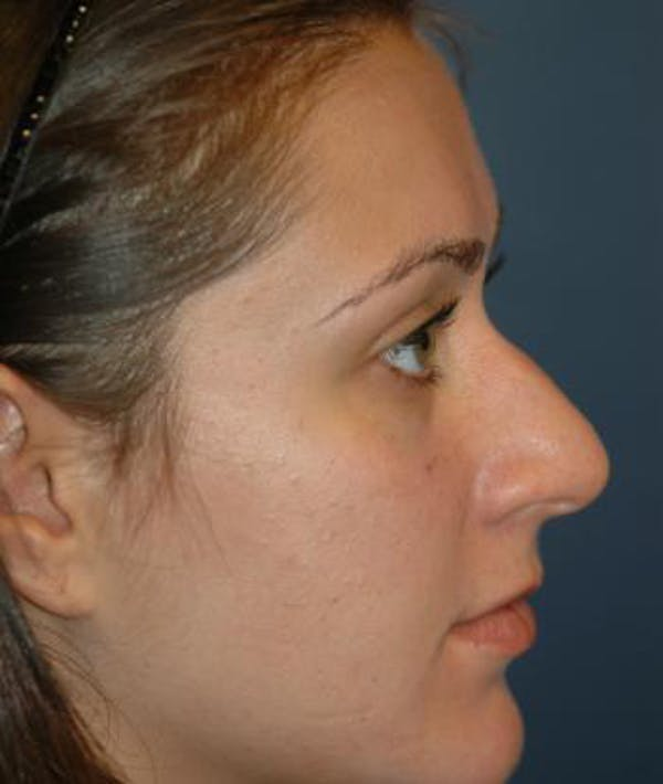 Rhinoplasty Gallery - Patient 4861555 - Image 3