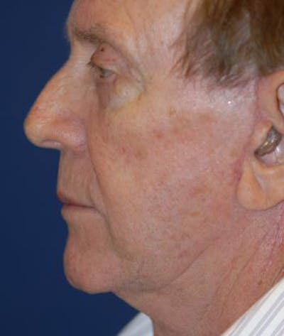 Facelift Gallery - Patient 4861553 - Image 4