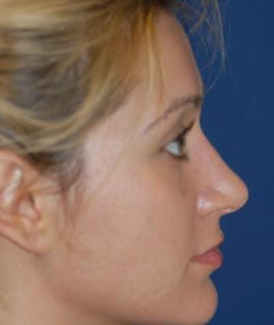 Rhinoplasty Gallery - Patient 4861555 - Image 4