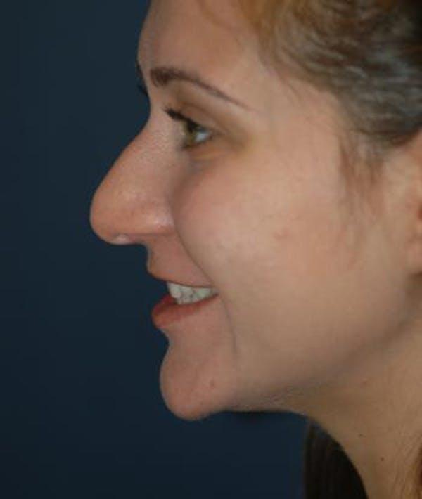Rhinoplasty Gallery - Patient 4861555 - Image 5