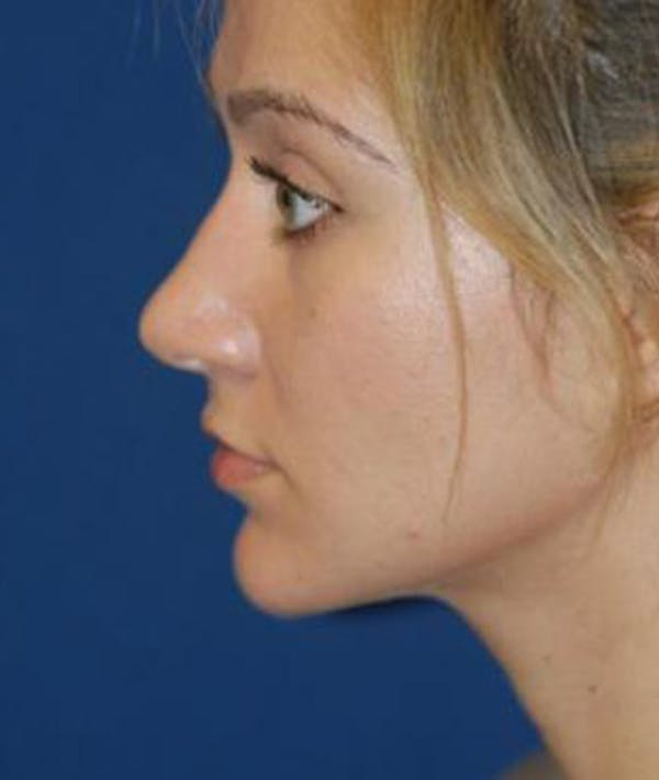 Rhinoplasty Gallery - Patient 4861555 - Image 6