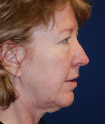 Facelift Gallery - Patient 4861556 - Image 1