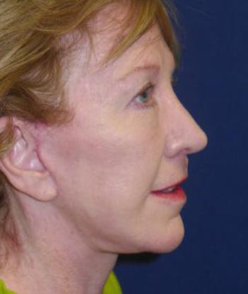 Facelift Gallery - Patient 4861556 - Image 2