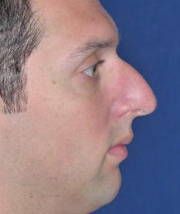 Rhinoplasty Gallery - Patient 4861557 - Image 5