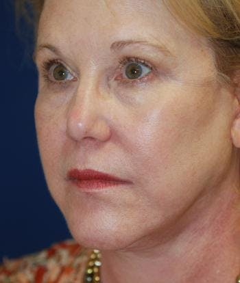 Facelift Gallery - Patient 4861558 - Image 2