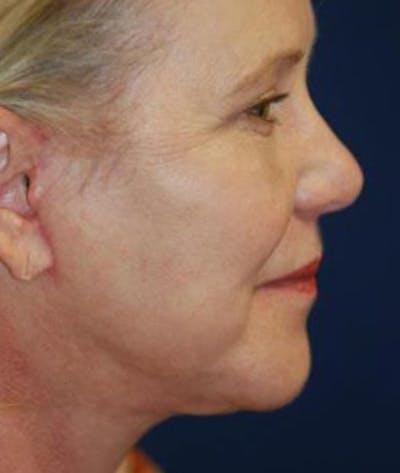 Facelift Gallery - Patient 4861558 - Image 4