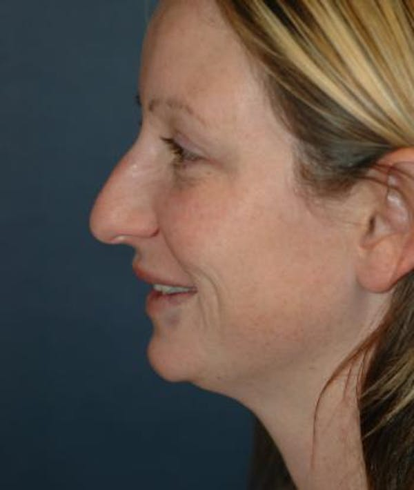 Rhinoplasty Gallery - Patient 4861559 - Image 5