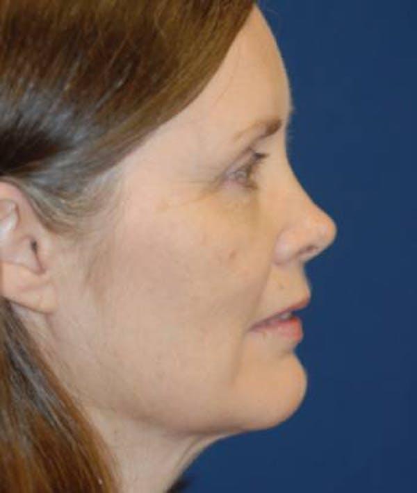 Facelift Gallery - Patient 4861560 - Image 5