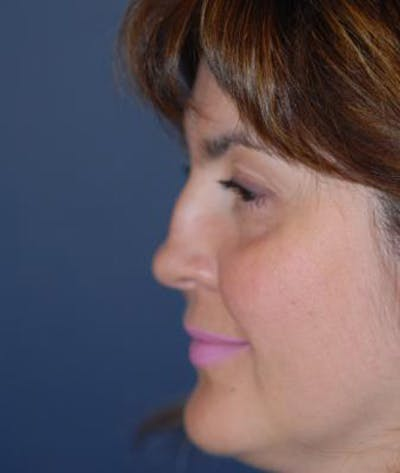 Rhinoplasty Gallery - Patient 4861563 - Image 1