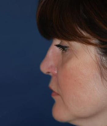 Rhinoplasty Gallery - Patient 4861563 - Image 2