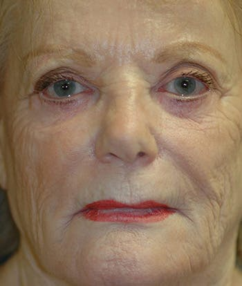 Facelift Gallery - Patient 4861562 - Image 1