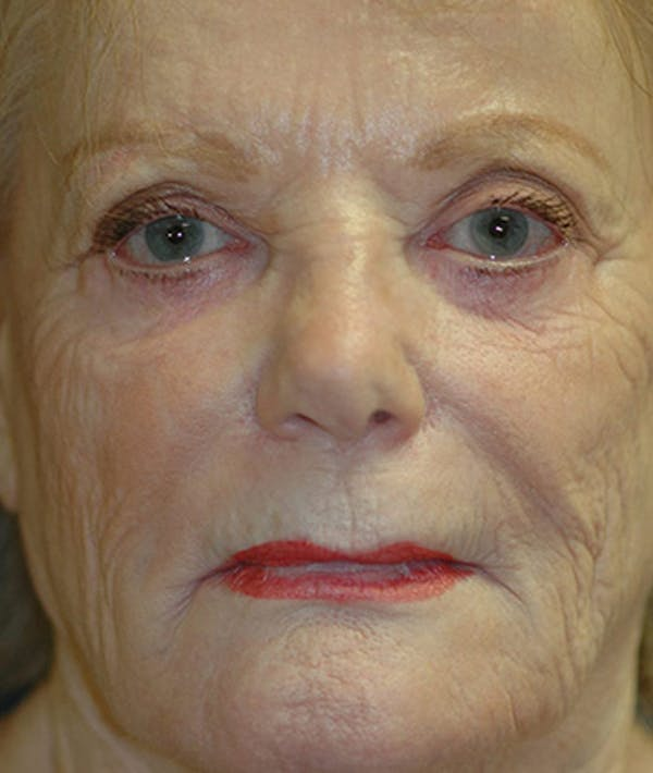 Facelift Gallery - Patient 4861562 - Image 1