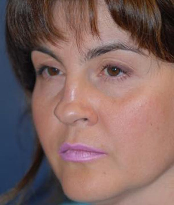 Rhinoplasty Gallery - Patient 4861563 - Image 3