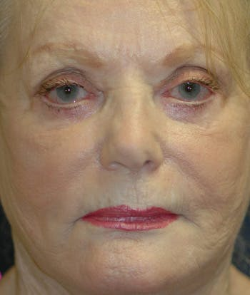 Facelift Gallery - Patient 4861562 - Image 2