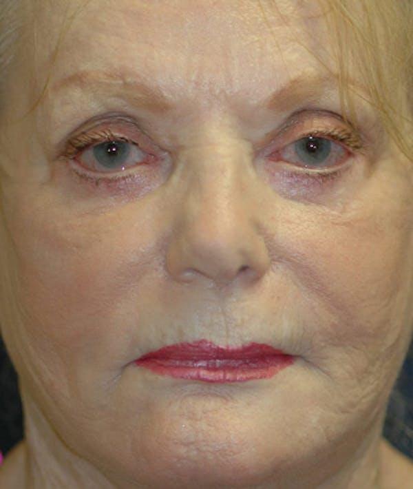 Facelift Gallery - Patient 4861562 - Image 2