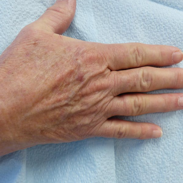 Hand Rejuvenation Gallery - Patient 4861566 - Image 1