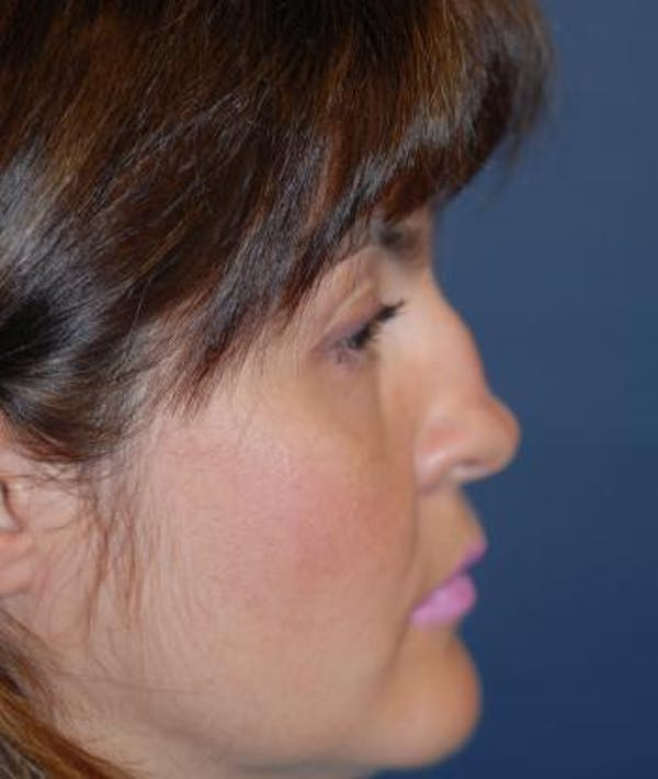 Rhinoplasty Gallery - Patient 4861563 - Image 5