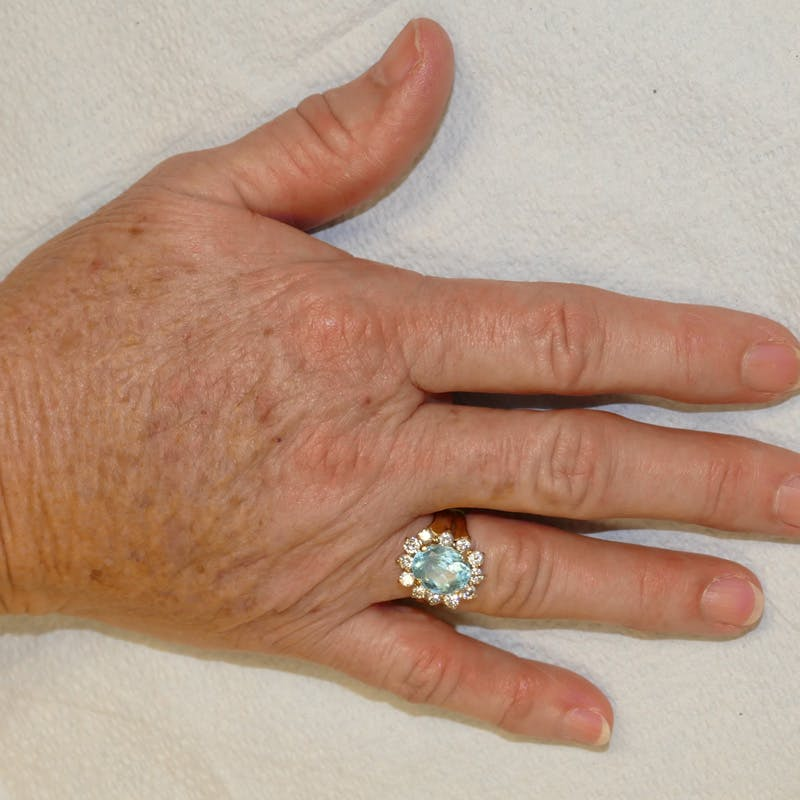 Hand Rejuvenation Gallery - Patient 4861566 - Image 2