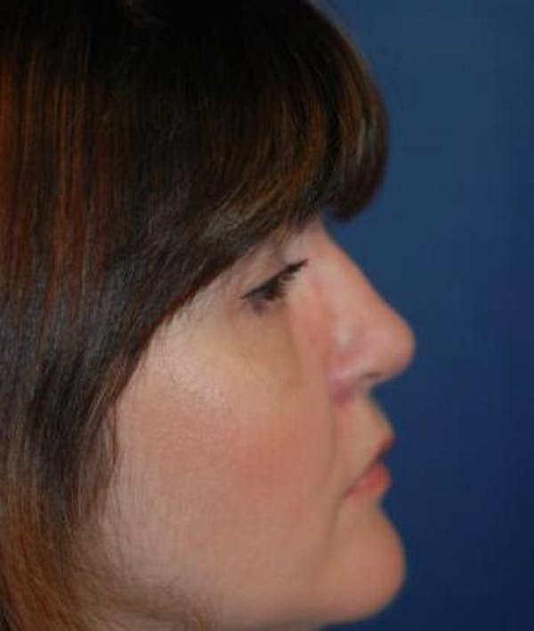 Rhinoplasty Gallery - Patient 4861563 - Image 6