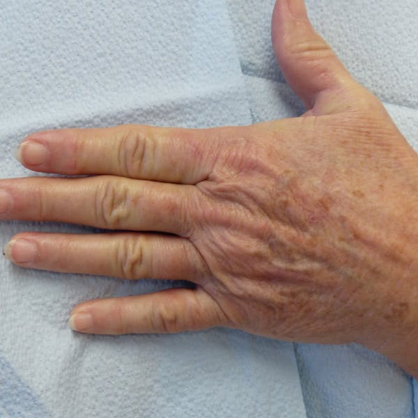 Hand Rejuvenation Gallery - Patient 4861566 - Image 3
