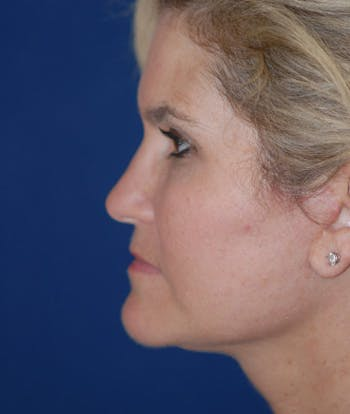 Facelift Gallery - Patient 4861565 - Image 2