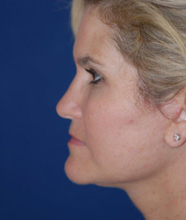 Facelift Gallery - Patient 4861565 - Image 2