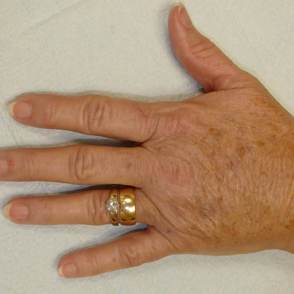 Hand Rejuvenation Gallery - Patient 4861566 - Image 4