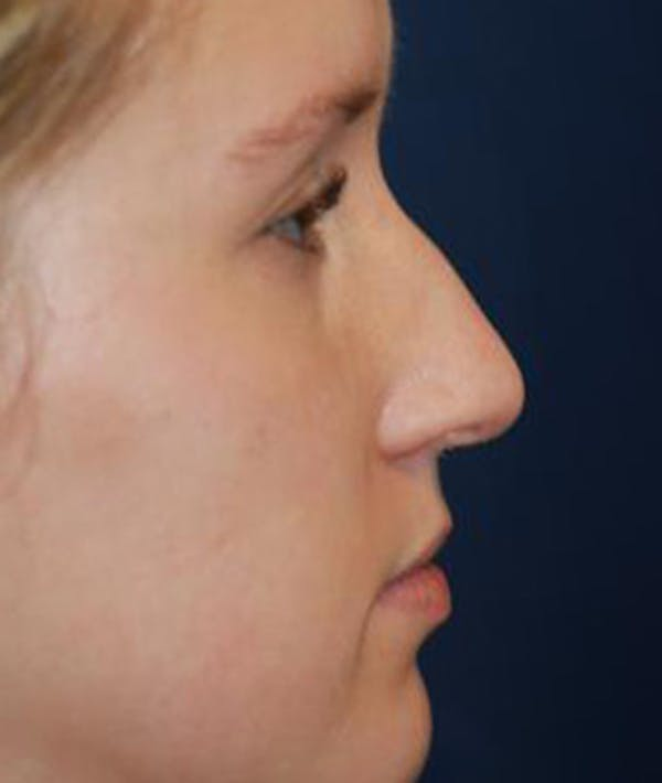 Rhinoplasty Gallery - Patient 4861568 - Image 1