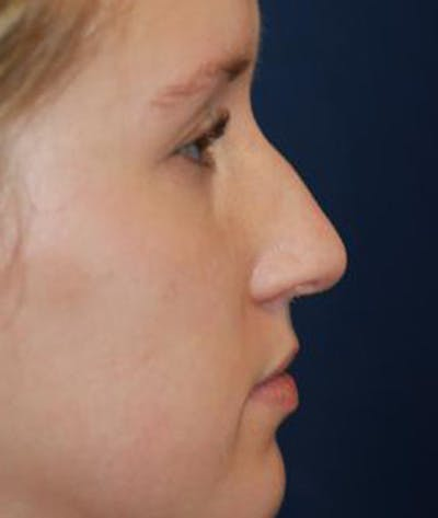 Rhinoplasty Gallery - Patient 4861568 - Image 1