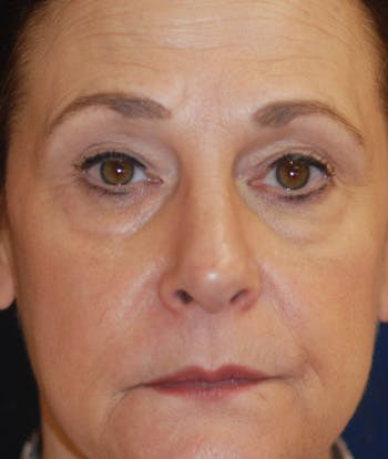 Facelift Gallery - Patient 4861567 - Image 1