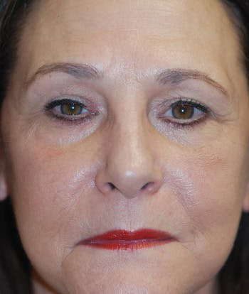 Facelift Gallery - Patient 4861567 - Image 2
