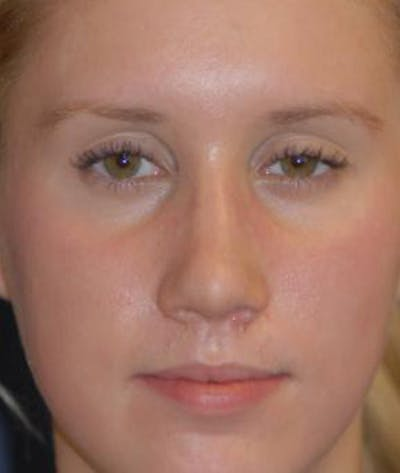 Rhinoplasty Gallery - Patient 4861568 - Image 4
