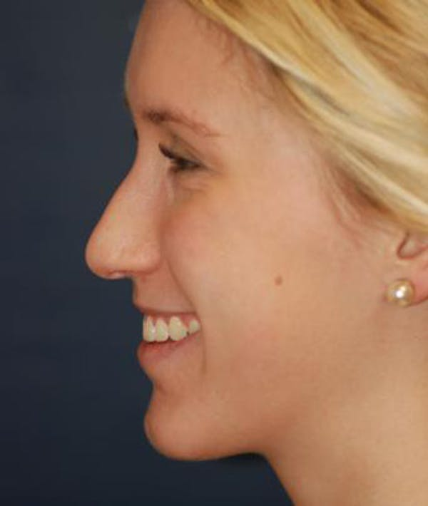 Rhinoplasty Gallery - Patient 4861568 - Image 5