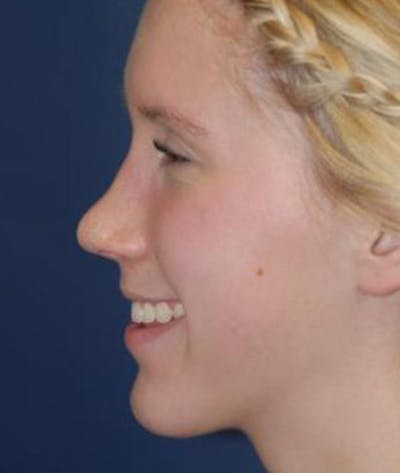 Rhinoplasty Gallery - Patient 4861568 - Image 6