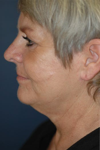 Facelift Gallery - Patient 4861569 - Image 1