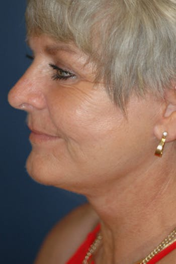 Facelift Gallery - Patient 4861569 - Image 2
