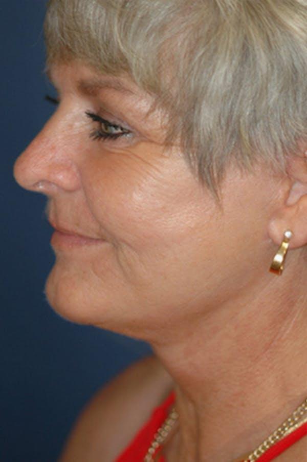 Facelift Gallery - Patient 4861569 - Image 2