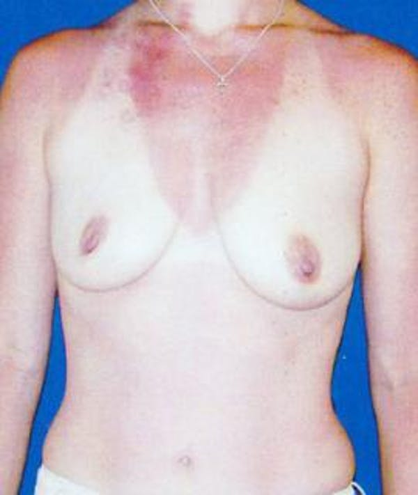 Breast Lift Gallery - Patient 4861580 - Image 1