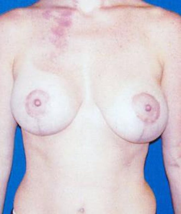 Breast Lift Gallery - Patient 4861580 - Image 2