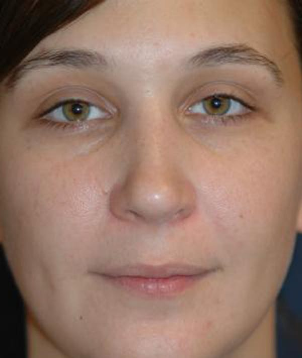 Rhinoplasty Gallery - Patient 4861582 - Image 2