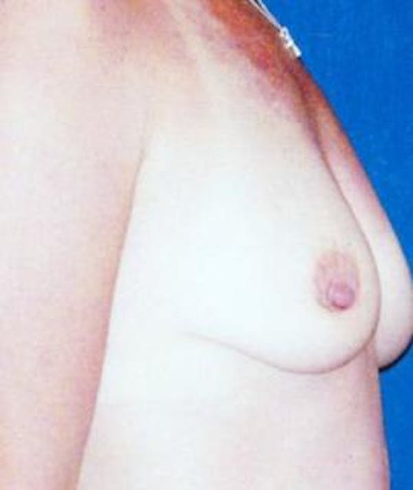 Breast Lift Gallery - Patient 4861580 - Image 3