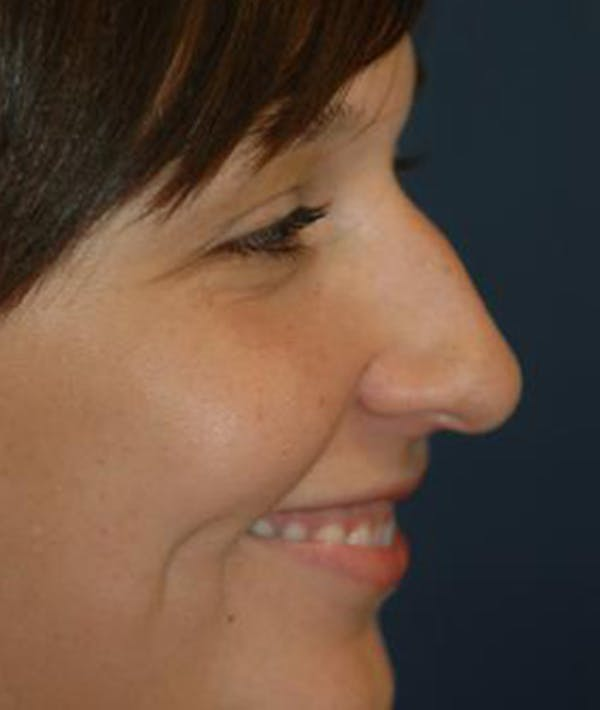 Rhinoplasty Gallery - Patient 4861582 - Image 3