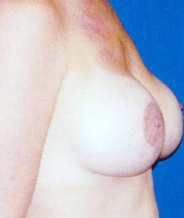 Breast Lift Gallery - Patient 4861580 - Image 4