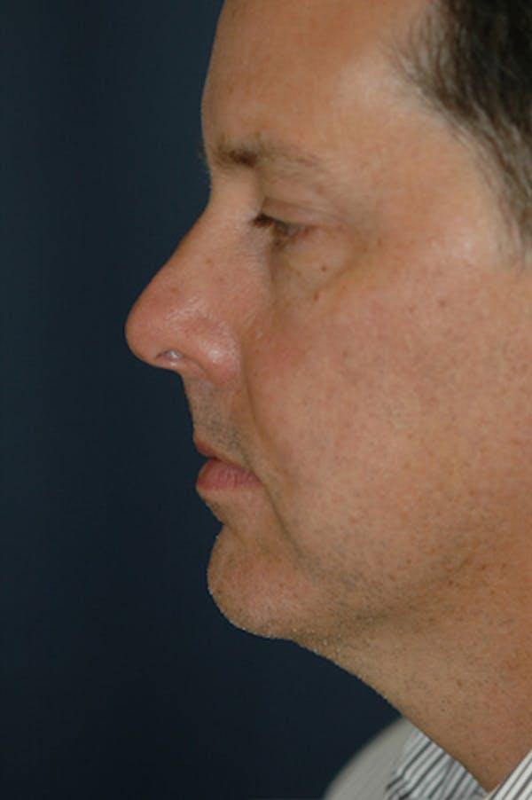 Facelift Gallery - Patient 4861581 - Image 1