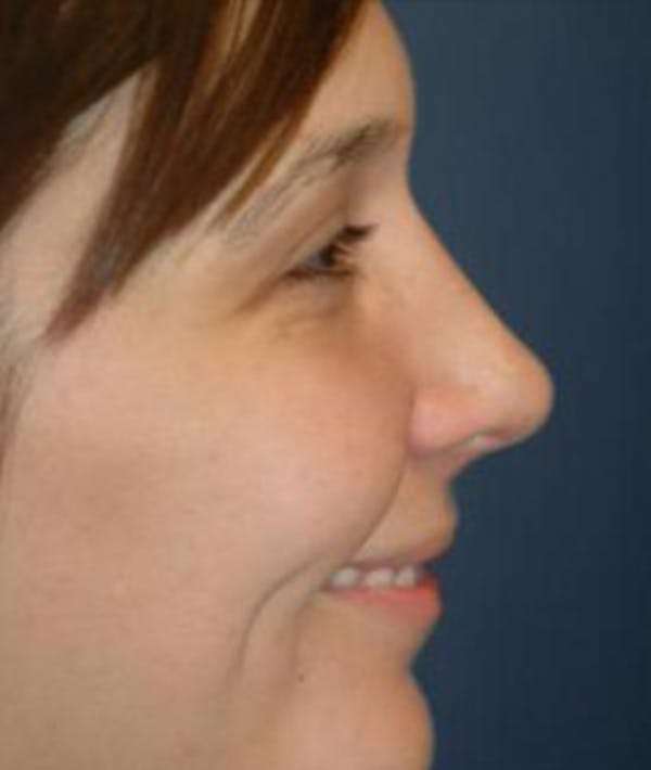 Rhinoplasty Gallery - Patient 4861582 - Image 4