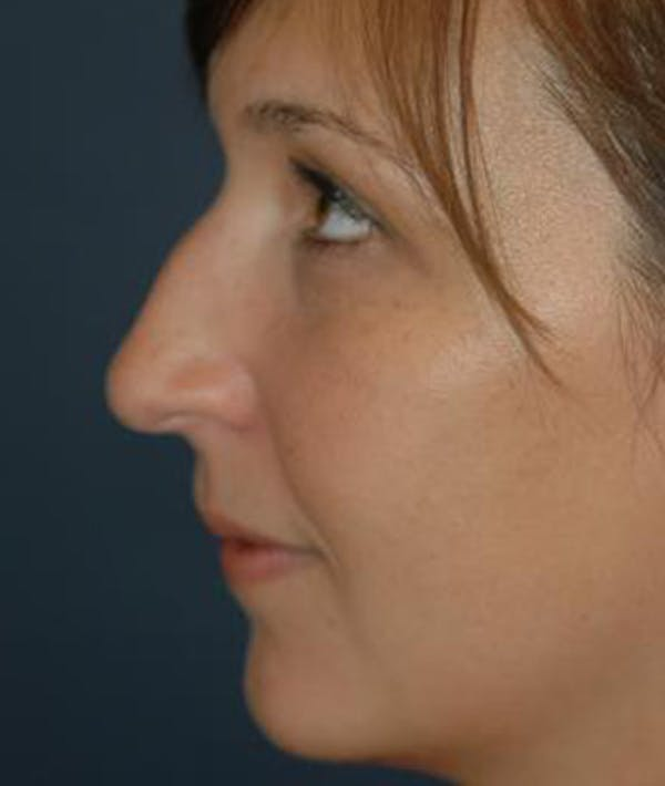 Rhinoplasty Gallery - Patient 4861582 - Image 5