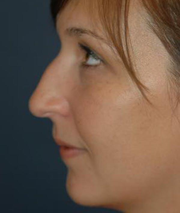 Rhinoplasty Gallery - Patient 4861582 - Image 5