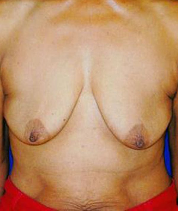 Breast Lift Gallery - Patient 4861583 - Image 1